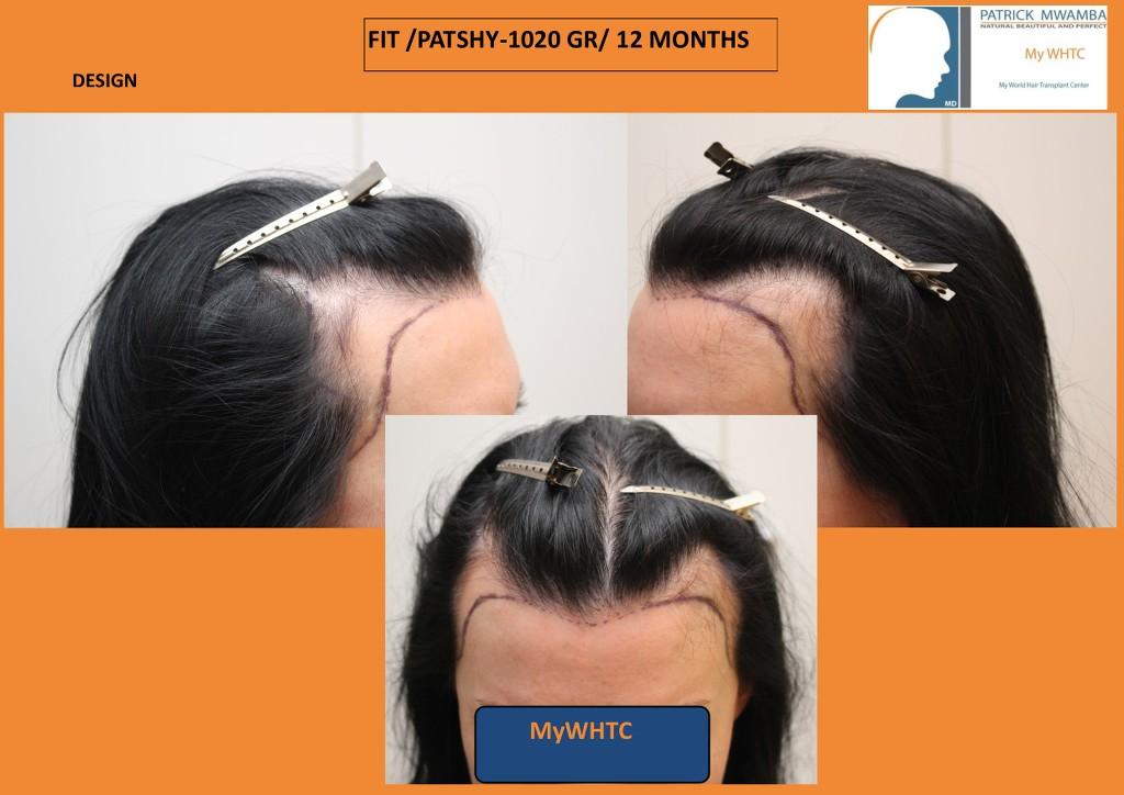 international hair loss forum dr mwamba mywhtc 1020 fit rasage partiel femme. Black Bedroom Furniture Sets. Home Design Ideas