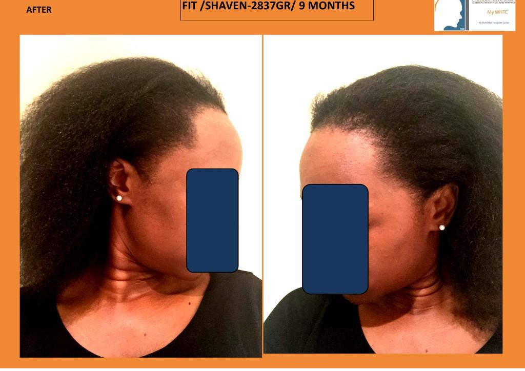 international hair loss forum dr mwamba mywhtc 2837 fut femme alopecie cicatricielle. Black Bedroom Furniture Sets. Home Design Ideas
