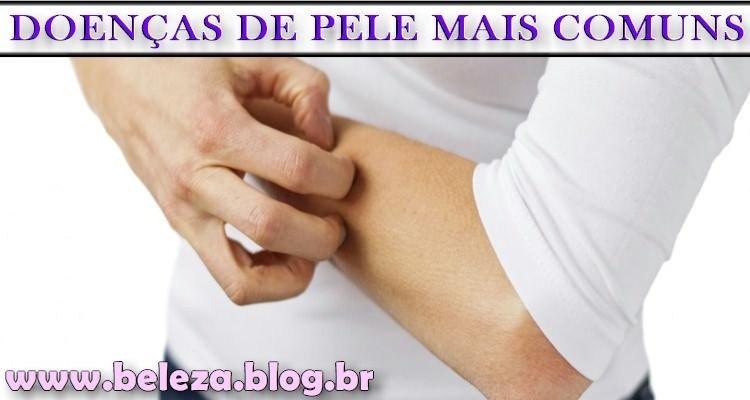 DOENÇAS DE PELE MAIS COMUNS