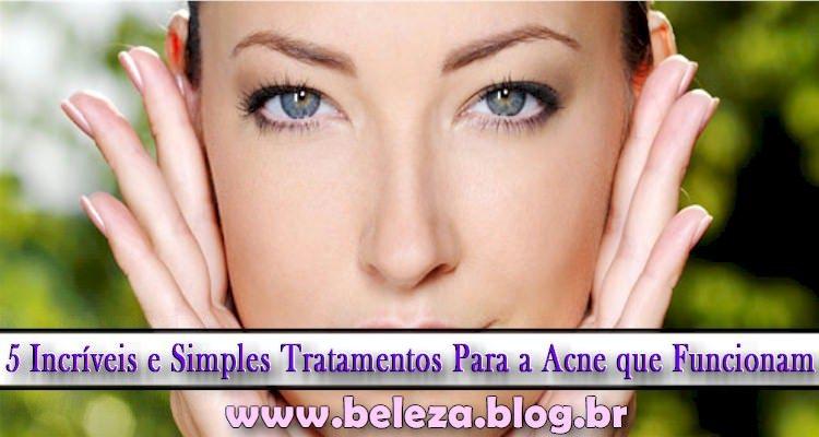 5 Incríveis e Simples Tratamentos Para a Acne que Funcionam