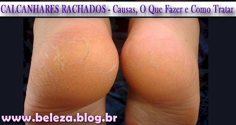 CALCANHARES RACHADOS