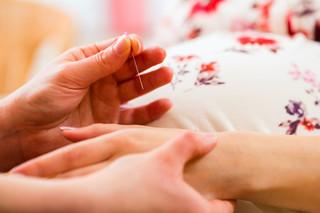Modningakupunktur, igangsættelse af fødsel med akupunktur