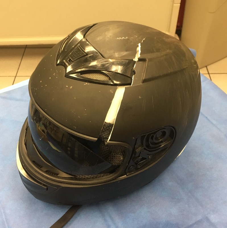 Broken Helmet After Crash Sportbikes Net
