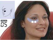 Usytuwanie elektro | worki po oczami | Tua Face