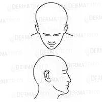 alopecia universale