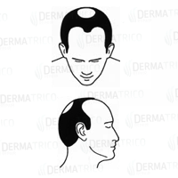 Diradamento hairline e vertex
